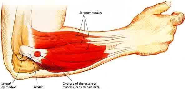 What might I do to go about seeing if I need surgery for tennis elbow?