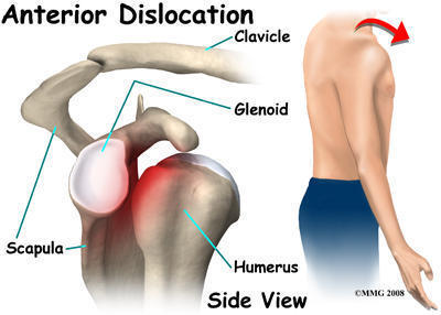 What are the many ways I can make my shoulder never dislocate again?