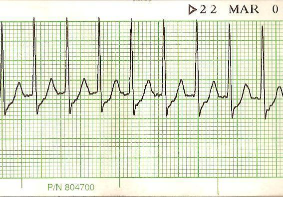 Is it possible to get SVT after having an ablation?