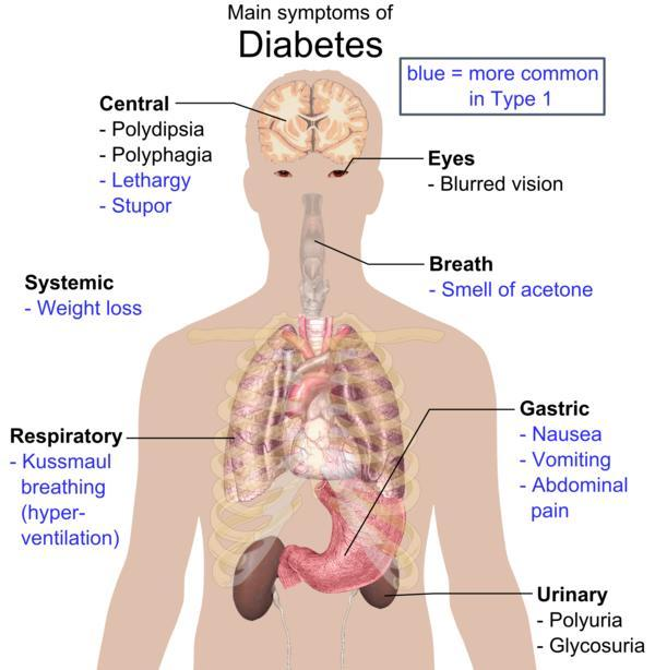 What are the most common side effects of diabetes ?
