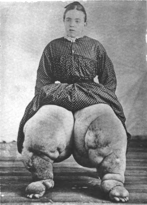 How is elephantiasis diagnosed?