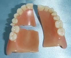 What can I do if my tooth on my denture broke off is it safe to use superglue or gorilla glue?
