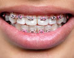 Please tell me how long it takes for to put braces on the top and bottom?