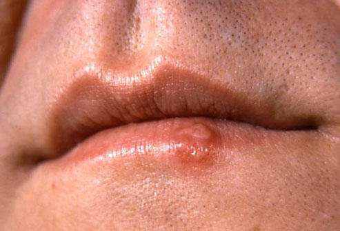 I have some irritated area on my upper lip. It look like water boils. I have a bad cough and a cold. What could it be?