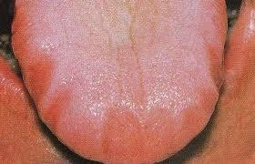 I've a sore throat and scalloped tongue that's a little sore? I've had scalloped tongue once before had full blood count was normal