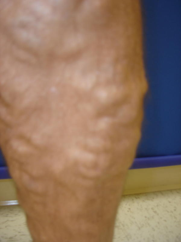 Is it possible to distinguish between varicose veins spider veins and blood clots?
