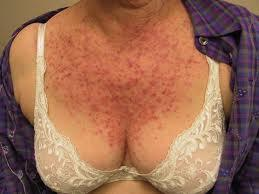 Keratosis pilaris cure diet - Answers on HealthTap