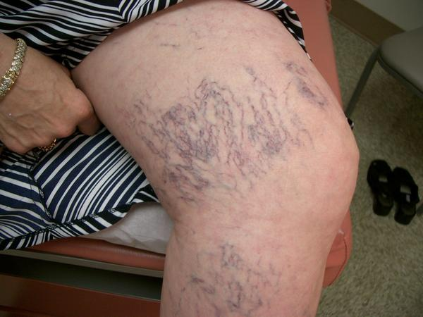 Purple veins on thighs not stretch marks need to get rid of them. How?