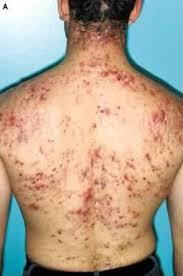 How can I effectively treat back and chest acne fast?