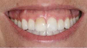 Can there be any way to correct a high gum line?