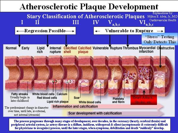 Please describe the disease called when plaque builds up in the arteries?