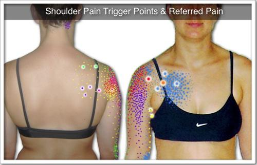 Shoulder pain breast cancer