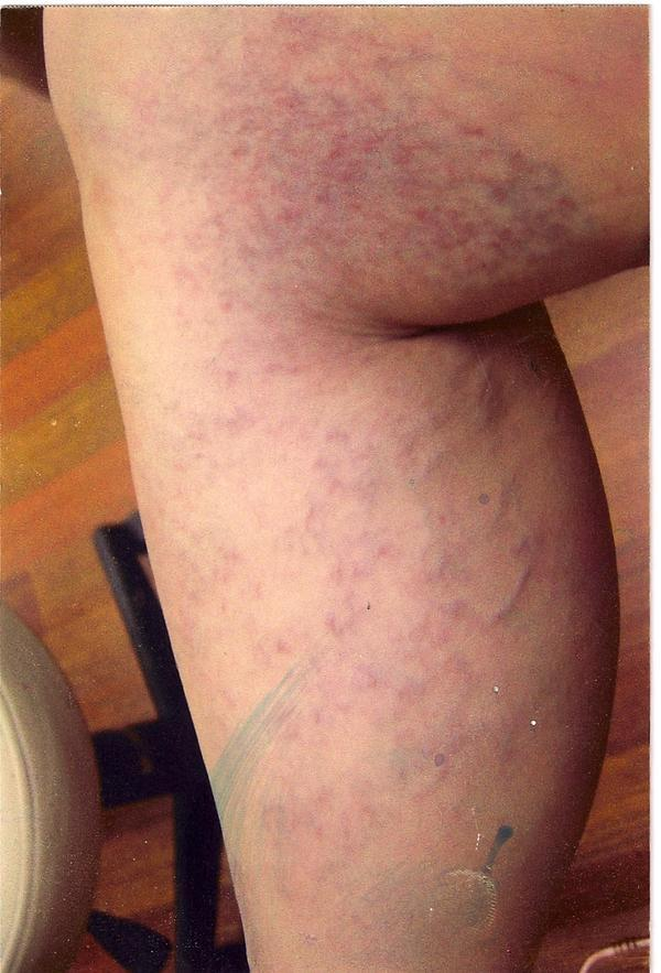 Simplest ways to reduce appearance of spider veins?