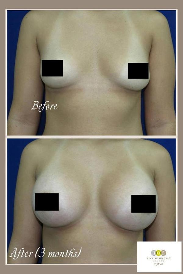Can you please tell me which is the top contraceptive pill to take for bigger breasts?