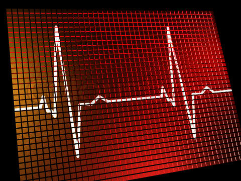 My normal heart rate  is 140bpm its gottwn up to 230bpm but my doctor would listen to me so i no longer see him. Is that heart rate normal at 19yrs?