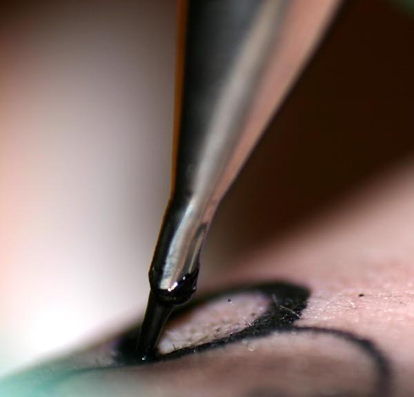 How can you safely get a tattoo with von willebrands disease?