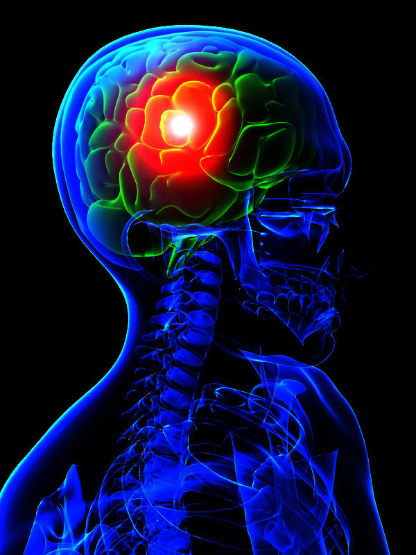 If your having a stroke are the symptoms one-sided all the way through or can it start bilaterally and turn one-sided?