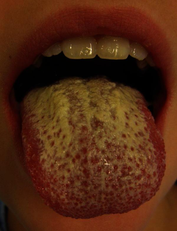 ... oral thrush get worse before better when you go on the candida diet