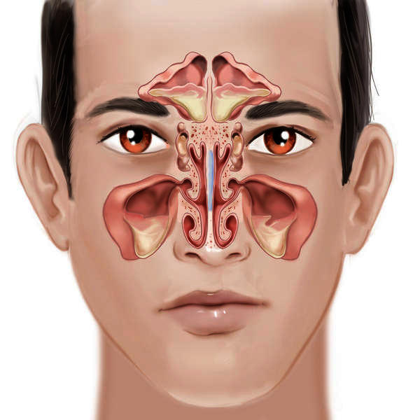 how to clear up a sinus infection