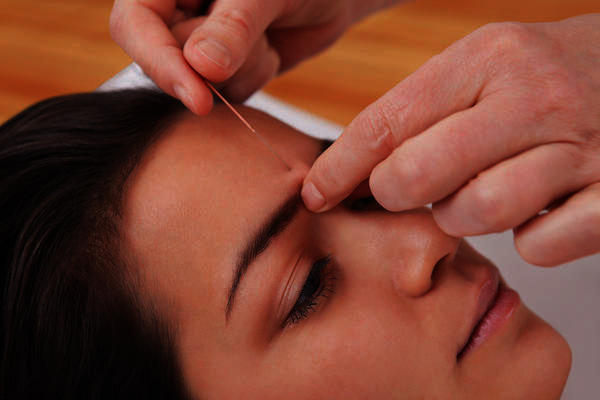 Could acupuncture help with insomnia or other sleep symptoms?