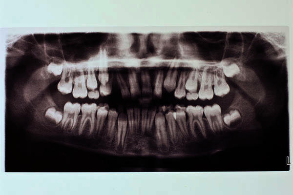 Why are dentists and the dental association in denial about the use of amalgam?