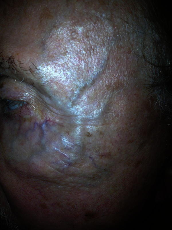 Can sclerotherapy be used for spider veins on the face? I have had spider veins on my face for a number of years. I would love to able to look in the mirror and not see them anymore. Do physicians ever use sclerotherapy to get rid of these veins? .