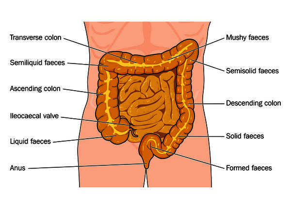 I suffer from indigestion. Sometimes a find a white substance when I pass stool. I go to the washroom atleast 3-4 times a day. Do I have a worm?