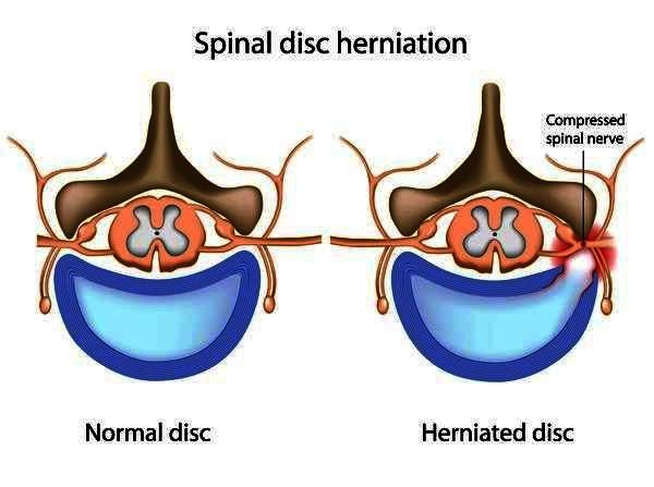 I have been diagnosed with a ruptured disc in my lower back. I have a lot of pain in lower back, leg, foot. What should I do? Chronic back pain