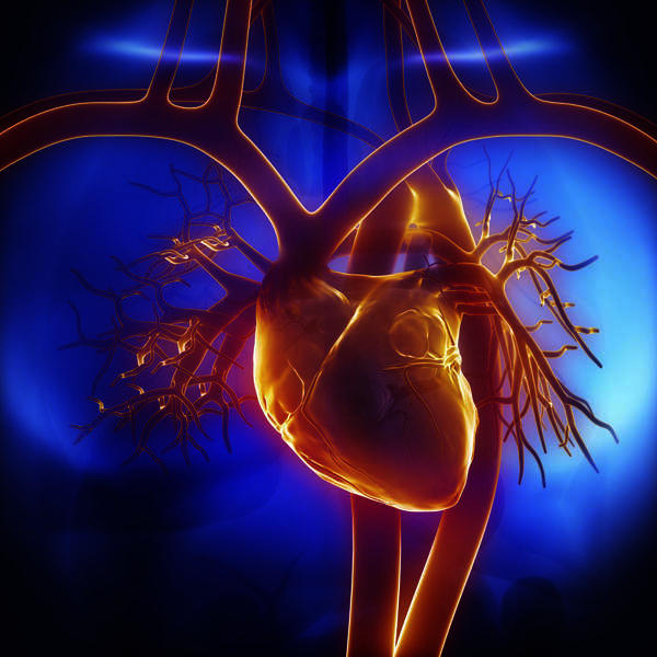 How does hypertension cause myocardial infarction?