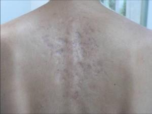 Are there some effective ways to clear up back acne scaring (pretty severe)?