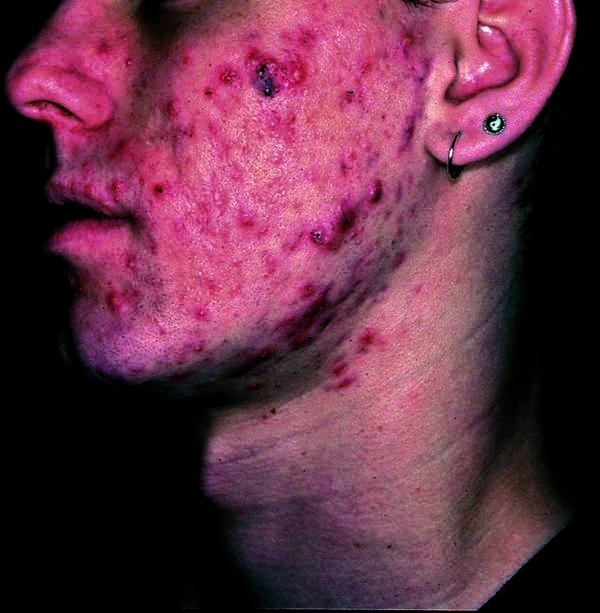 What natural methods can I use to get rid of acne and possible acne scarrings?