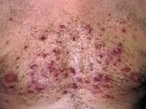 What's a fast way to take care of mild chest acne quickly?