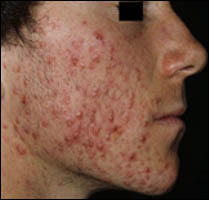 What's usually recommended for getting rid of my type of acne?