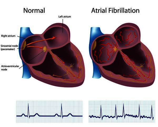 Can you take viagra with afib