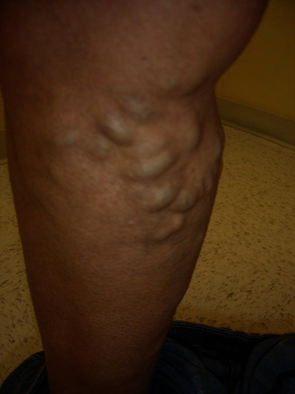 What are ways to treat bulging veins naturally?