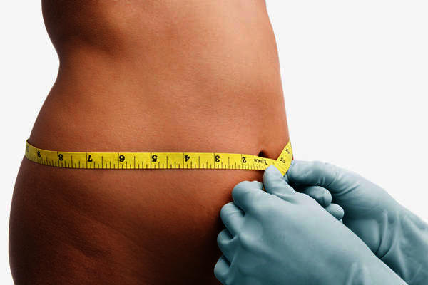 What are the risks of liposuction?
