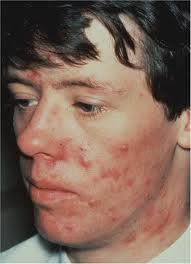 What do I do to get rid of acne over the summer?
