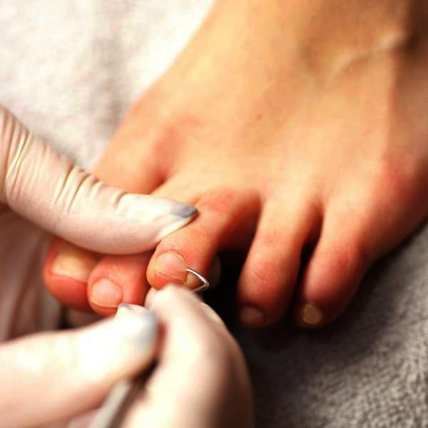 What are ways to get rid of an ingrown toe nail?