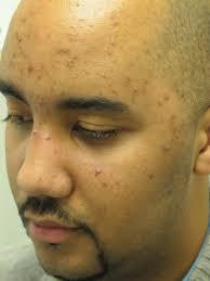 What can be done to stop suffering from acne on my cheeks?