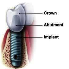 What are the pros and cons to having a 1 or 2 part implant (i look at the implant crown as being the 3rd part)? Cost difference, etc.?
