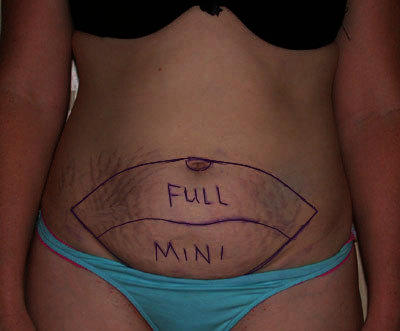 What can I expect after an abdominoplasty?