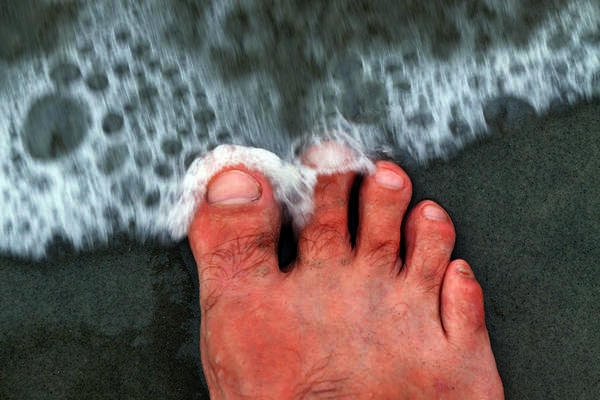 What causes black and blue toenails?