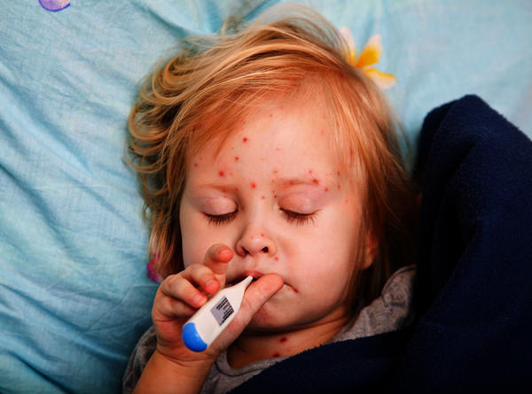 My granddaughter has measles shes neally one yr old. Was due her injections in just two wks. She also has a bad throat. How best to keep her comfortab?
