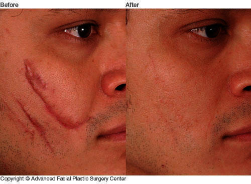 How can scar laser treatment work?