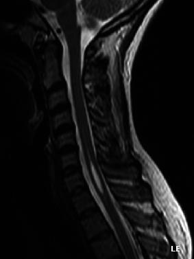 Will you die from syringomyelia? Is it possible that even though I'm experiences symptoms due to syringomyelia but drs won't do surgery due to risks?