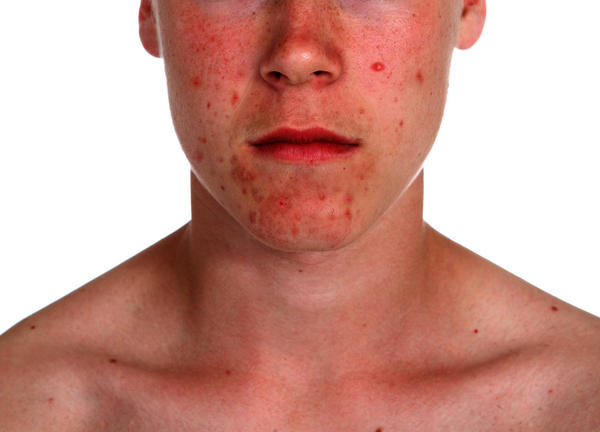 Can isotretinoin be used for mild acne?