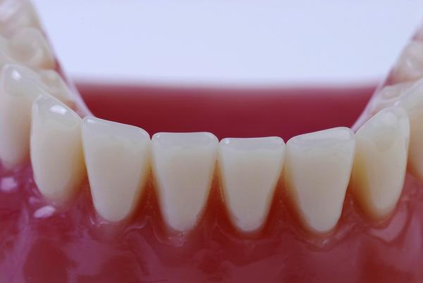 Diseases or cause what looks like a few teeth have grown above the gum, indentation in gum where tooth was, and few diff enamal gone at gum, brushfloss, d?