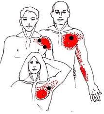 I am having right breast cramping. Kind of like a charlie horse. When I move my arm it makes it worse. Please help!