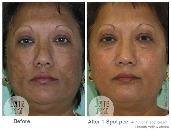 Cure for melasma that is permanent?