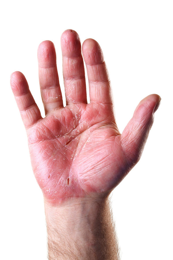 I have excruciating pain in the palm of my left hand...What could be causing this?